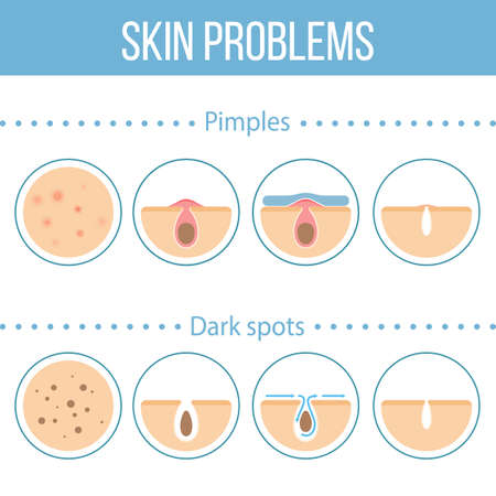 skin face: Skin problems icons set.