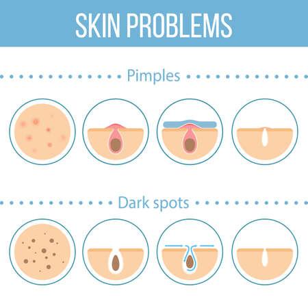 pores: Skin problems icons set.