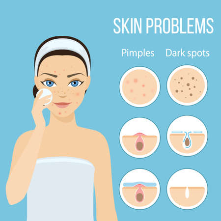 remedies: Girl cleans her face with cosmetic lotion. Skin problems solution, home remedies. stock illustration.
