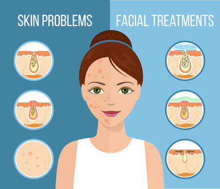Girl with skin problems on her face such as acne, pimples and clogged pores.