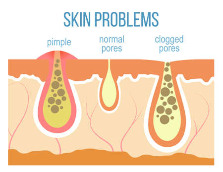 Skin problems - acne, pimples and clogged pores. Skin pores close up. Vector.