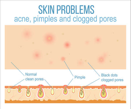 Skin problems such as acne, pimples and clogged pores. Top view of skin and side view of pores. Vector.