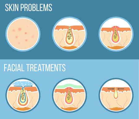 Hautprobleme wie Akne, Pickel und verstopfte Poren. Gesichtsbehandlung Infografik, Hautprobleme Lösung und Hautpflege. Vektor.
