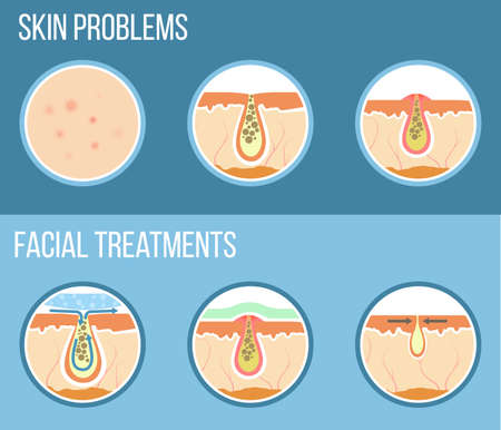 Skin problems such as acne, pimples and clogged pores. Facial treatment infographic, skin problems solution and skin care. Vector.