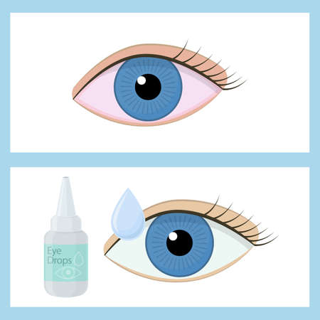 Eye drops on white background, cartoon illustration of medical accessory for correct vision. Vector