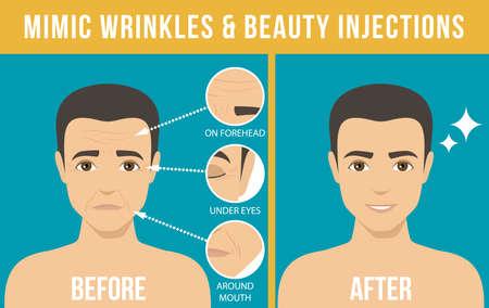 Man's anti-aging huidverzorging en herencosmetica. Verschillende soorten rimpels in het gezicht. Man voor en na Botox-injectie. Anti-verouderingsprocedure. Vector Vector Illustratie