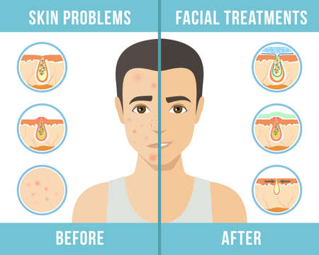 Man with a problem skin. Treatment of acne, skin care, men's cosmetics. Vector