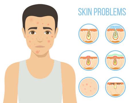 Man with a problem skin. Treatment of acne, skin care, mens cosmetics. Vector Ilustração