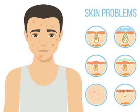 Man with a problem skin. Treatment of acne, skin care, mens cosmetics. Vector Illustration