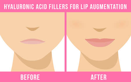 Woman makes procedure of beauty injection for lip augmentation. Lips before and after hyaluronic acid lip filler injection. Vector Illustration