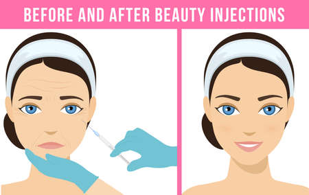Women anti-aging skin care. Different types of facial wrinkles. Woman before and after injection. Anti-aging procedure. Vector Stock Illustratie
