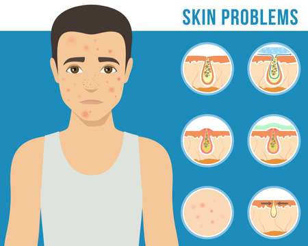 Man with a problem skin. Treatment of acne, skin care, men s cosmetics. Vector