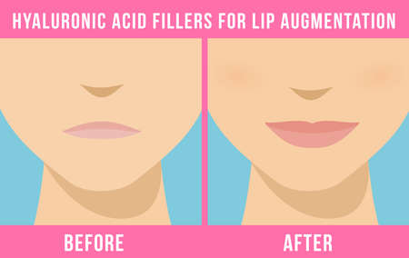 Woman makes procedure of beauty injection for lip augmentation. Lips before and after hyaluronic acid lip filler injection. Vector Stock Illustratie