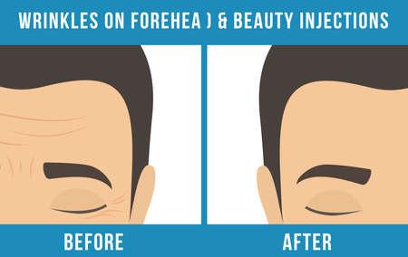 Anti-Aging-Hautpflege für Männer und Männerkosmetik. Verschiedene Arten von Gesichtsfalten. Mann vor und nach der Injektion. Anti-Aging-Verfahren. Vektor