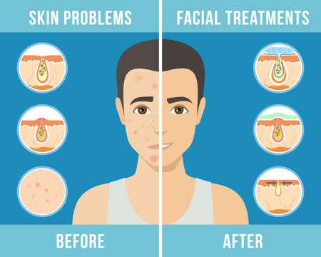 Uomo con problemi di pelle. Trattamento dell'acne, cura della pelle, cosmetici maschili. Vettore Vettoriali