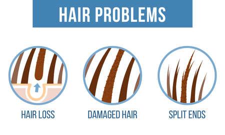 Cuidado del cabello. Problemas comunes del cabello: puntas abiertas, cabello dañado, caída del cabello. Vector Ilustración de vector