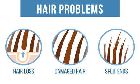 Soin des cheveux. Problèmes capillaires courants - pointes fourchues, cheveux abîmés, chute de cheveux. Vecteur Vecteurs