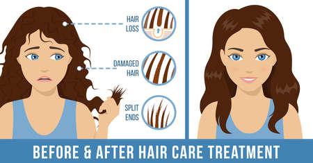 Haarpflege. Häufige Probleme - Spliss, geschädigtes Haar, Haarausfall. Vor und nach der Pflegebehandlung. Vektor