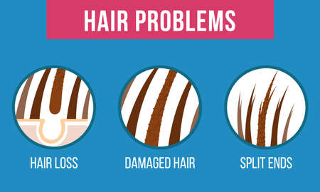 Hair care. Common problems - split ends, damaged, hair loss Vector Çizim