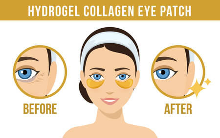 Before and after hydrogel eye patches. Cosmetic collagen eye patches. Golden eye patches for beauty and skin care. Vector
