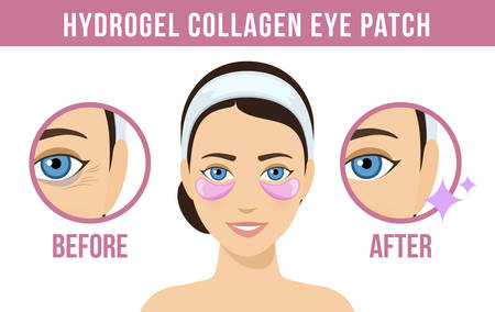 Before and after hydrogel eye patches. Cosmetic collagen eye patches. Pink eye patches for beauty and skin care. Vector
