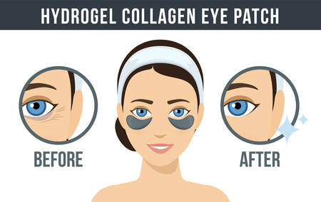 Before and after hydrogel eye patches. Cosmetic collagen eye patches. Black eye patches for beauty and skin care. Vector