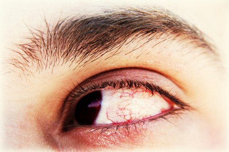 Bloody tired eye. Long computing concept Stock Photo - 4421360