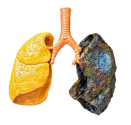 consequences: A plastic model of human lungs showing consequences of smoking Stock Photo
