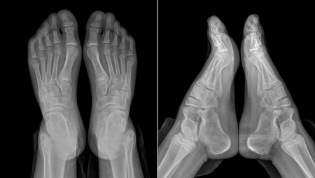 roentgenogram: X-ray image of the girls feet: two views with partially outlined socks and trousers