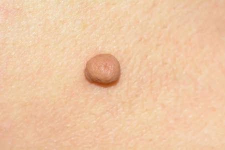 Skin tag of acrochondon of zachte fibroom gebeurt meestal aan de hals, gezicht, oksels en lichaam.