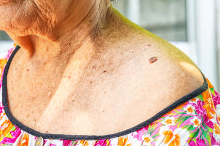Skin tag or acrochondon or soft fibroma is a safe. It have not effect to the body. It usually occurs at neck, face, armpits and body. Stockfoto