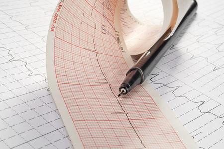 cardiograph: cardiogram and technical pen Stock Photo