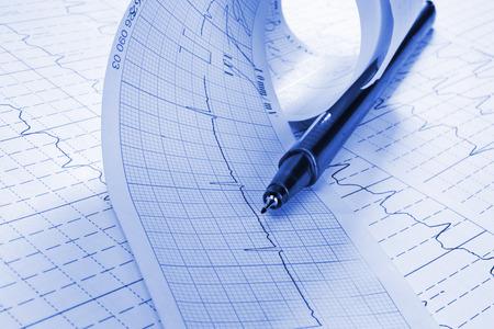 cardioid: cardiograma y la pluma t�cnica