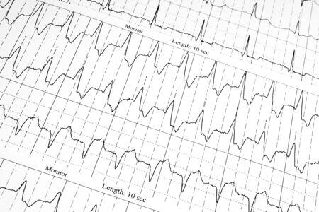tachycardia: cardiogram as background