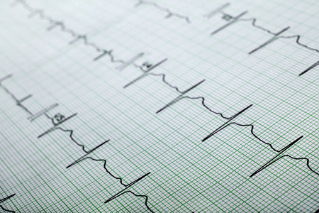 Printed ECG, can be used as a background