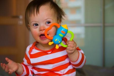 Portret van schattige babyjongen met het syndroom van Down Stockfoto