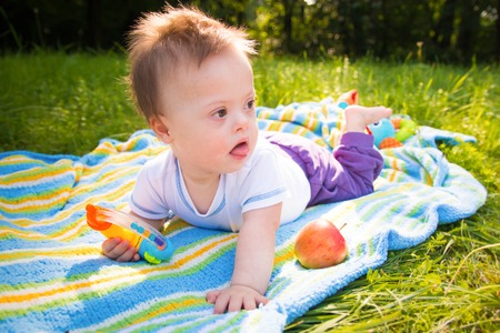 Portrait of Cute baby boy with Down syndrome lying on blanket in summer day on nature