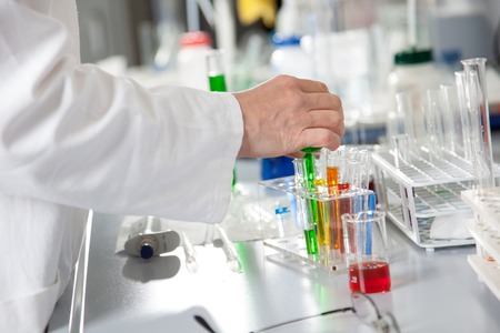 injurious: A Chemist is preparing a test with some colored fluids  Stock Photo