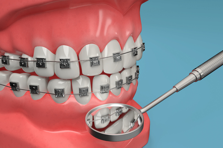 A 3D rendering from a dental brace check with a stomatoscope.