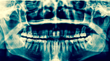impacted: Dental X-Ray. A panoramic x-ray of a mouth, with intact wisdom teeth, one of which is severely impacted. Stock Photo