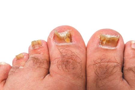 A toenail fungus