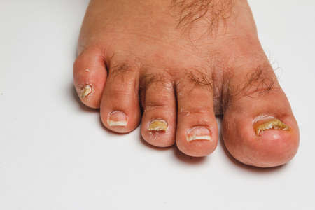 A toenail fungus at the peak of the infection. Stock Photo
