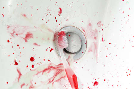 toothbrush with blood in the sink and toothpaste bleed gum copy space. close aps