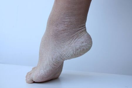 Close up of female foot, heel with dry, badly cracked skin and cracks. Dermatology, medical, cosmetic concept human feet with exfoliating epidermis Фото со стока