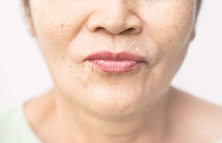 wrinkled and lines of old asian woman skin texture in closeup selective focus 写真素材 - 100703579