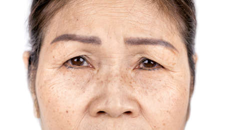 wrinkle freckles and skin line on close up elderly asian woman face 60-70 years old, healthy skin care concept Zdjęcie Seryjne