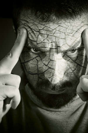 Upset man with cracked skin and a headache Stock Photo - 3836650