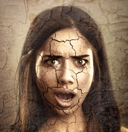 cracked: Skin Care Concept. Young Woman with Dry Cracked Face Stock Photo
