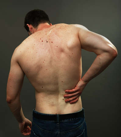 Male back skin full of melanoma moles