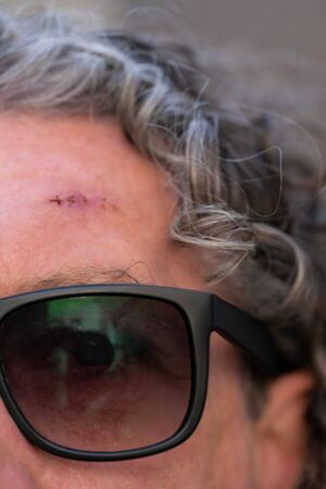 Close-up shot of a fresh operation wound with stitches showing scar on a mans forehead. Older man wearing sunglasses and greying curly hair.